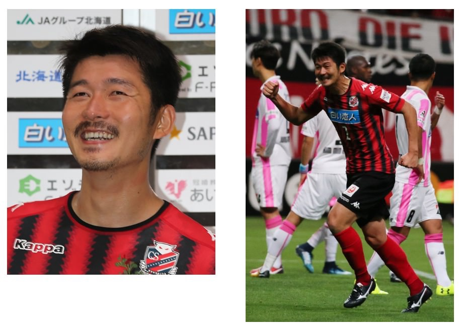 コンサドーレ札幌、横山知伸が脳腫瘍で手術を受けたと発表